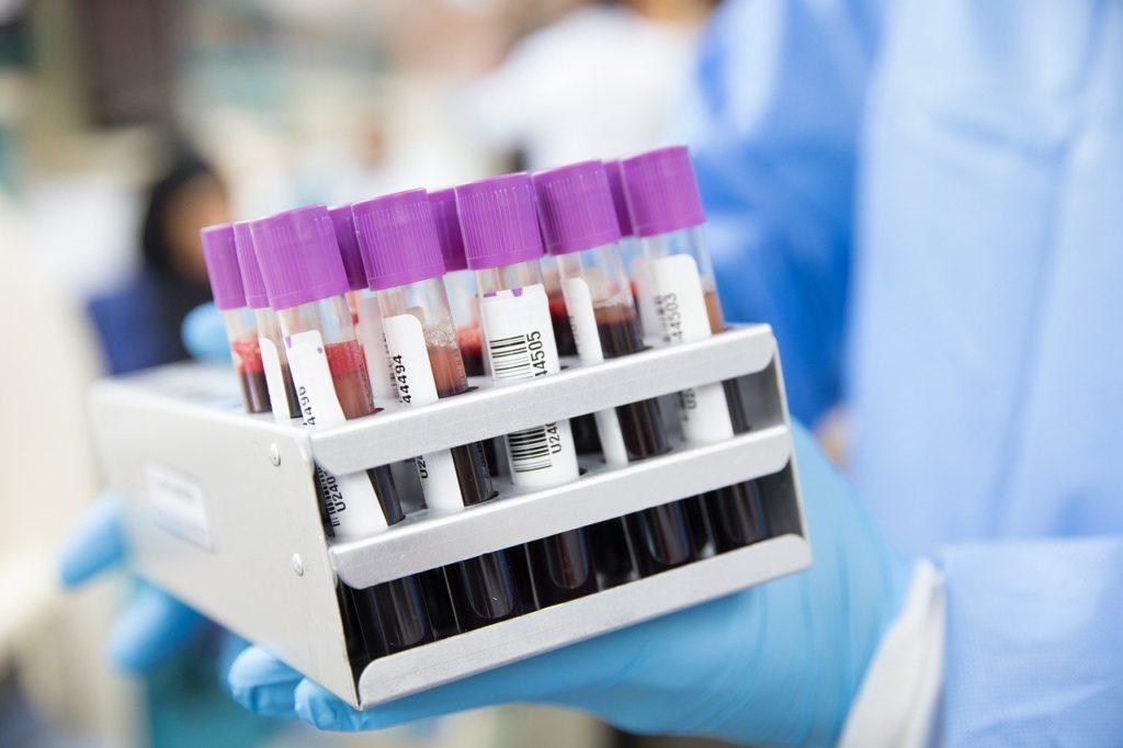 fiolki z krwią do badania